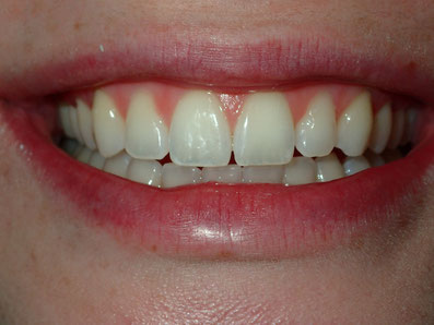 Veneers, Cosmetic dentist spanish fork