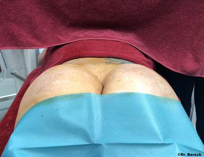 Gesäß direkt nach Transplantation von 250ml Eigenfett pro Seite