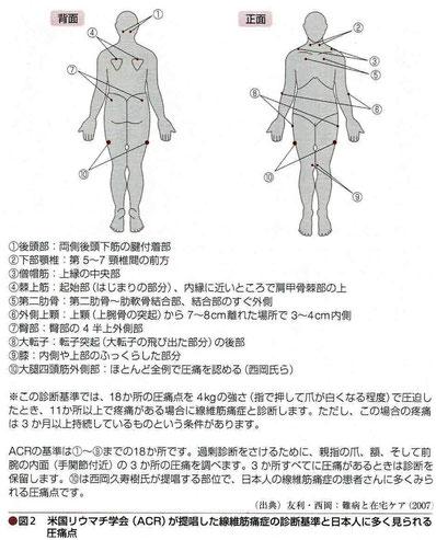 ACRが提唱した線維筋痛症の診断基準と日本人に多く見られる圧痛点