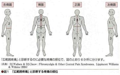 広範囲疼痛と診断する疼痛の部位