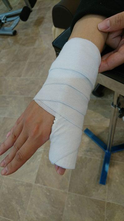 弾発指、ばね指、腱鞘炎治療  豊田市整骨院ヴィヴァーチェ
