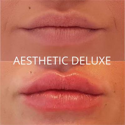 Lippen aufspritzen vorher nachher Bilder