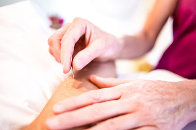 Mit Hilfe der Akupunktur Schmerzen und viele andere Leiden zielgerichtet behandeln