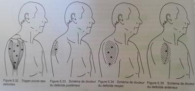 les deltoïdes