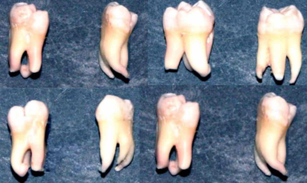 weisheitszahn zahnfleisch geschwollen