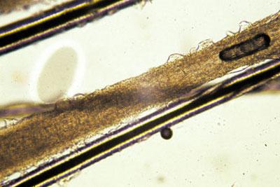 Teigne du chat et du chaton : Poil teigneux observable au microscope
