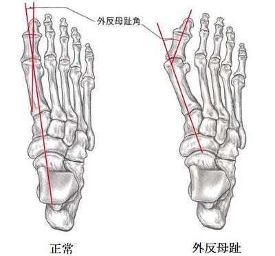 健常足と外反母趾