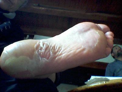"""Syndrome """"main pied"""" (ici... le pied : formation de grosses cloques comme suite à une brûlure ou une marche à pied avec de mauvaises chaussures ^_~) - les mains étaient à peu près dans le même état :/"""