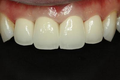 力強い感じの歯の形