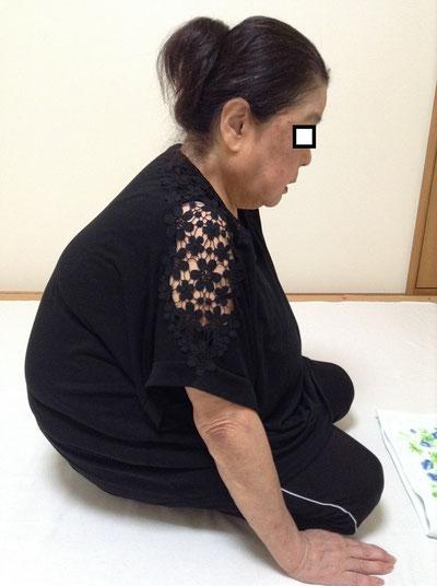 しんそう福井武生で施術する前の、身体がゆがんで脊柱管狭窄症になった女性