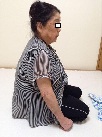 しんそう福井武生で施術後、猫背が伸びて脊柱管狭窄症が改善しました