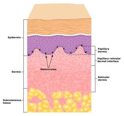 にきび跡の皮膚