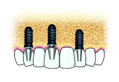 implants dentaires stomatologue