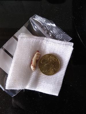 Der Rest des Zahns mit Wurzel