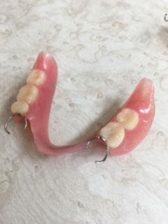 たかす歯科クリニック義歯