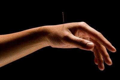Akupunktur Nadeln Dr. Tan Balance Methode Schmerzen sanft wirkungsvoll
