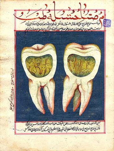 Zahnwurm