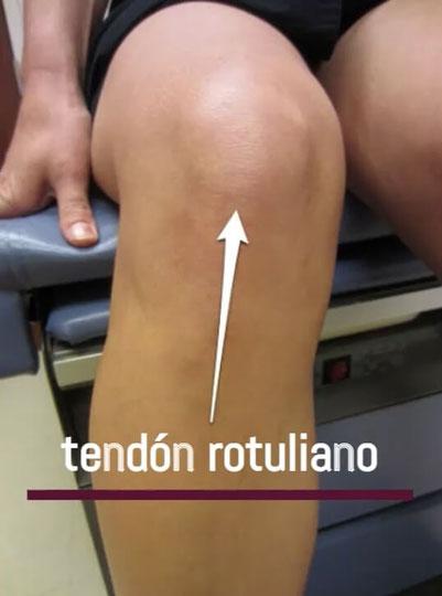 Fisioterapia tendinitis rotuliana