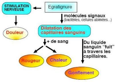 Etapes de la réaction inflammatoire. Source: http://alexandre.artus.free.fr