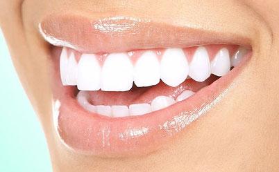 sourire facette dentaire