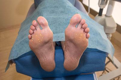 Tratamiento de callos y durezas del pie y hongos de uñas