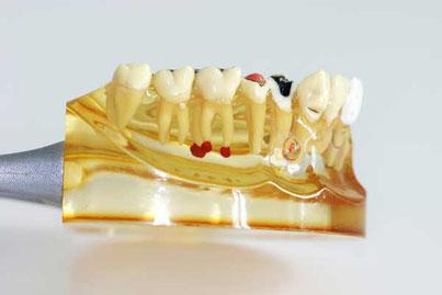 Modell mit Zahnwurzeln und markierten Wurzelspitzen