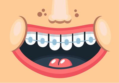 apparecchio fisso per i denti