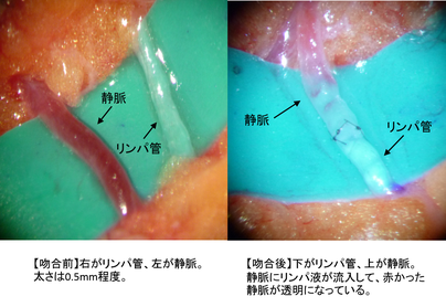 リンパ浮腫 リンパ管静脈吻合術 LVAの写真