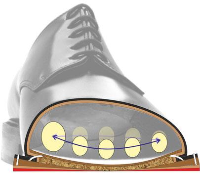 Querschnitt durch einen mehrfach falsch besohlten Schuh und die Folgen für das Fußquergewölbe (Spreizfuß)