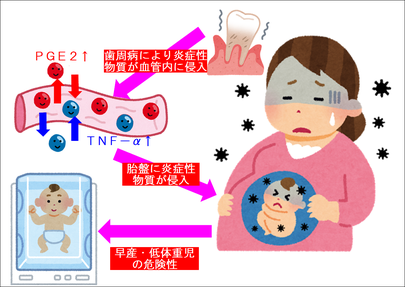 歯周病による妊娠への悪影響(早産・低体重児)