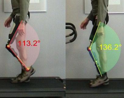 die videoanalyse macht hier Unterschiede zwischen 2 versch. Prothesen mittels Kniewinkeln sichtbar, der Träger läuft auf einem Laufband