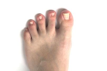 足の親指が使えていないと脚だけでどんなことが起こるか?