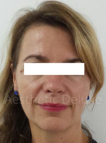 Faltenunterspritzung und Wangenvolumenaufbau mit Hyaluron | Unterspritzung Nasolabialfalte | Foto vor der Behandlung