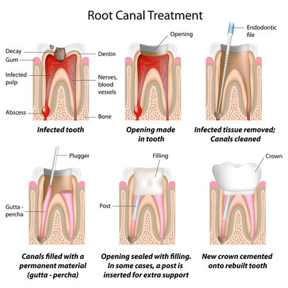 Root Canal Spanish Fork