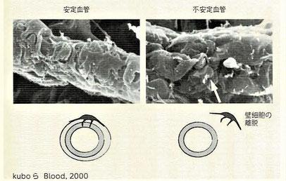 不安定血管に見られる壁細胞の離脱