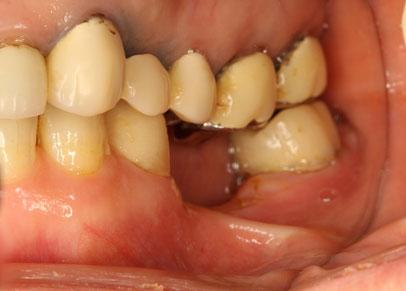 歯を抜いた後歯茎がくぼんでしまったケース