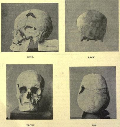 Der vermeintliche Schädel von Pharao Sanacht