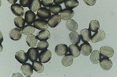 Pucciniastrum areolatum Sporen vom Fichtenzapfenrost