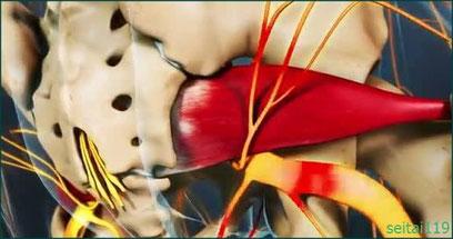 札幌市-坐骨神経痛の原因