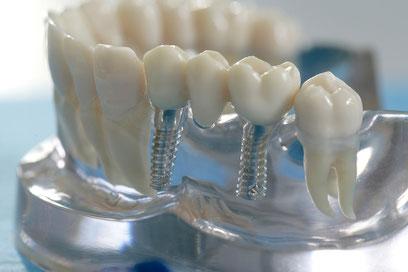 Implantate bei Mehrfachverlust