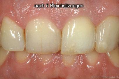 durch internes Bleaching aufgehellter Zahn