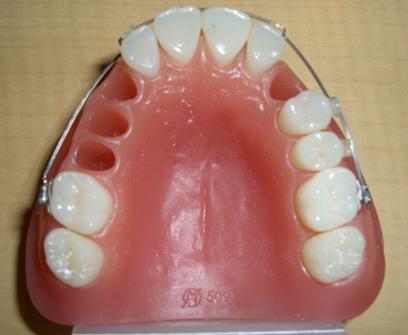 過蓋咬合と開咬、シザースバイトの改善、埋伏歯の牽引