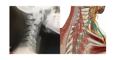 頸椎症 レントゲン 五十肩