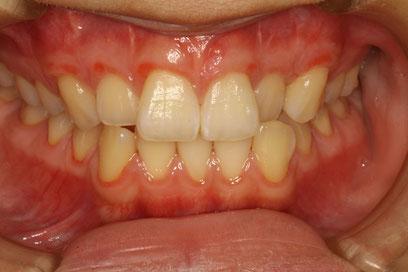 歯ぐきの再生治療を行いました.