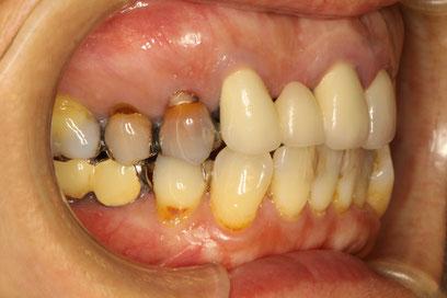 神経の死んでいる歯の変色