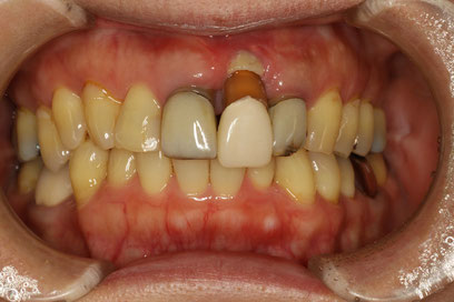 ブリッジの歯茎の再生治療