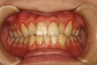 歯茎が下がったまま一生過ごすの?