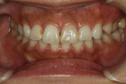 歯の神経が死んだ場合の変色
