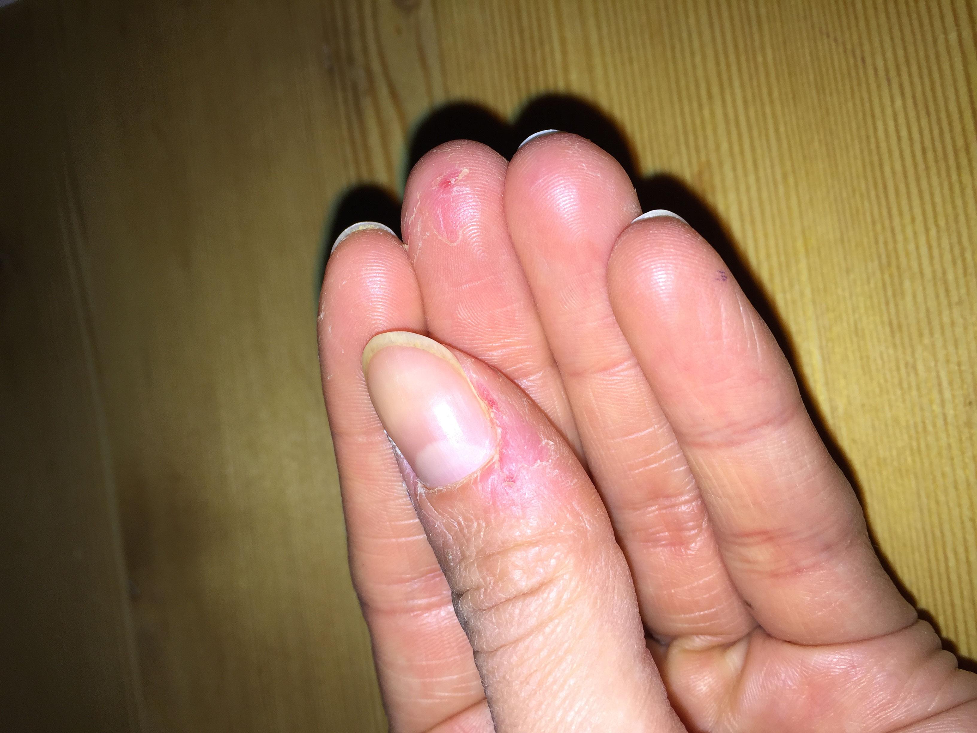 Extreme fingernägel