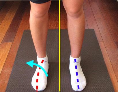 写真4)写真3の足部の拡大写真